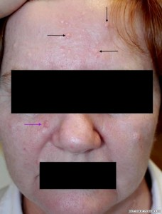 Nodular BCC right cheek