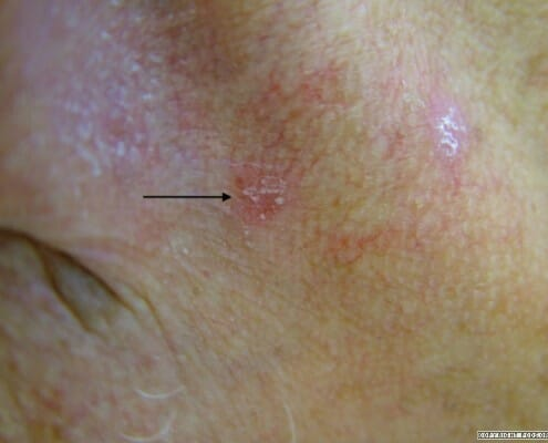 Solar Keratosis Diagnosis & Treatment