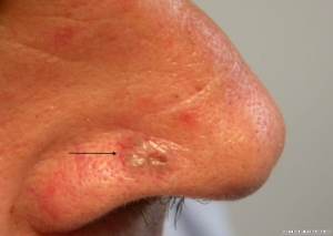 This is a large nodular BCC on the side of the nose (courtesy of PCDS.org.uk)