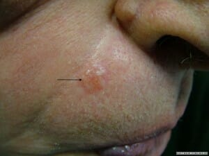 Morphoeic BCC above right lip