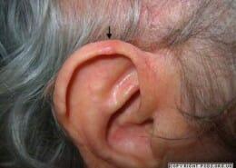 Chondrodermatitis in older male - raised nodule right outer upper ear