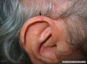 Chondrodermatitis in older male - raised nodule right outer upper ear