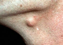 sebaceous cyst or epidermoid cyst