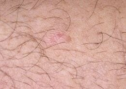 psoriasis can look like IEC