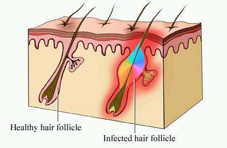 folliculitis diagram shows how the inflammation is centred around a hair follicle