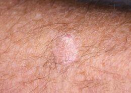 A seborrheic keratosis on the forearm that looks similar to an SCC