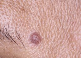 Seborrhoeic Keratosis on temple, this one looks a bit like an SCC.