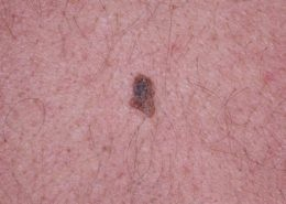 A relatively flat and pigmented Seborrhoeic Keratosis