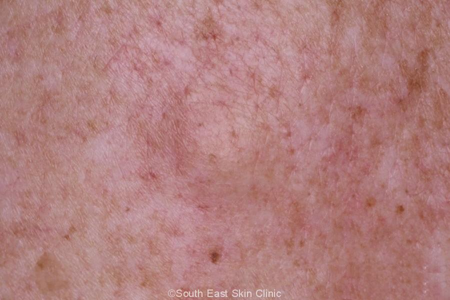 Sebaceous Cyst - South East Skin Clinic