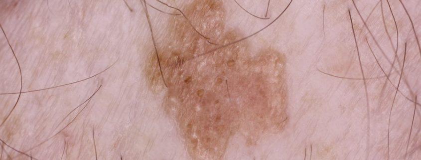 flat seborrhoeic keratosis