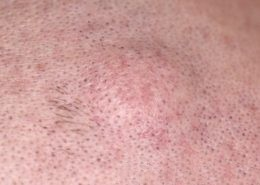 sebaceous cyst on scalp