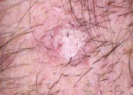 Pink Scaly Seborrhoeic Keratosis