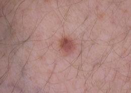 Dermatofibroma lower leg