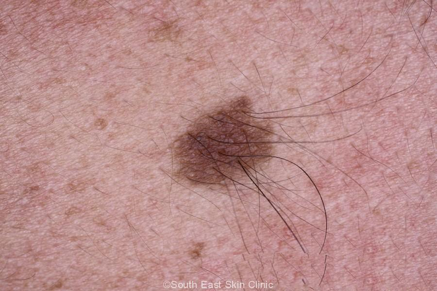 Mole (Nevus) - South East Skin Clinic