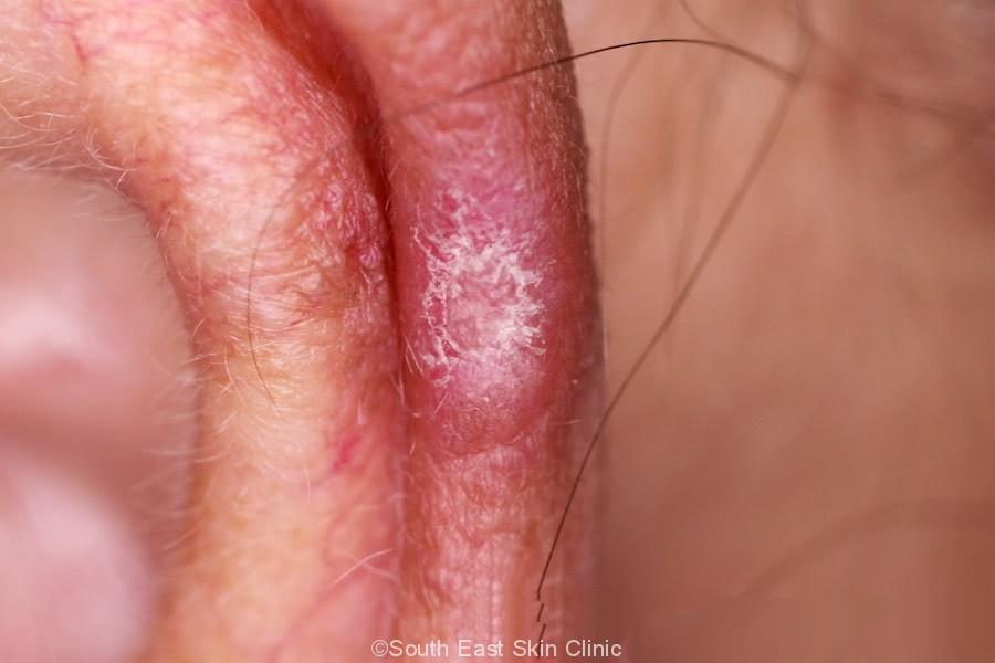 Chondrodermatis - South East Skin Clinic