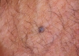 Blue Nevus Back of Hand