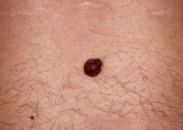 Unna Nevus lower back, dark