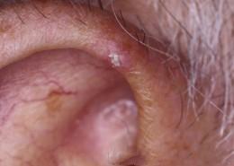chondrodermatis nodularis helicis r ear