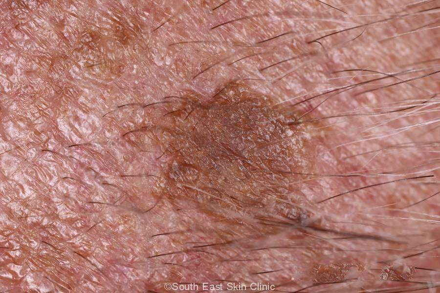 Seborrhoeic Keratosis - How to idenitify Seb K - Extensive ...
